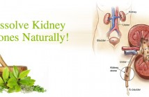 kidney stones treatments and drugs