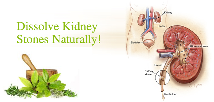 Herbal Treatment for Kidney Stone